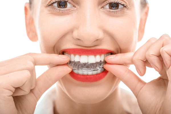 average cost of invisalign framingham ma