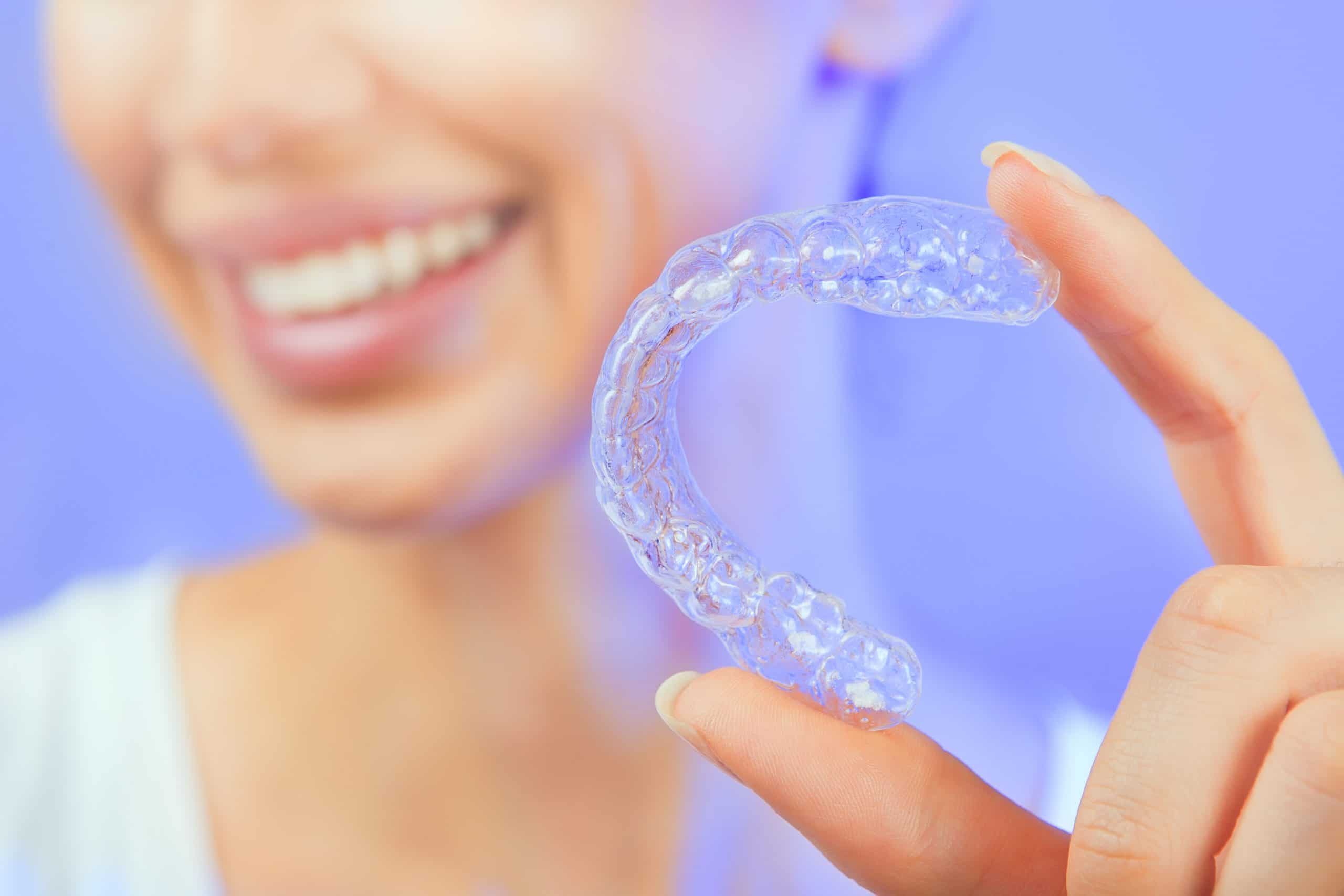 Invisalign Aligners – What To Expect