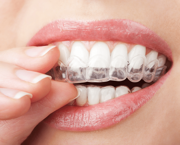 Invisalign in Framingham – What You Need to Know