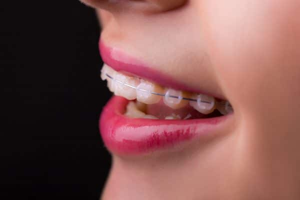 the benefits of braces in Framingham MA